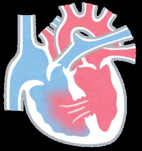 心室欠損症のイラスト